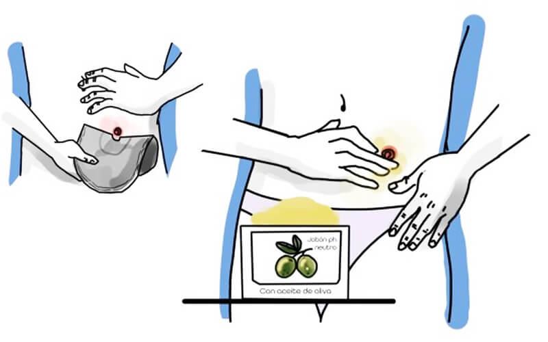 Estudian la eficacia de cosméticos naturales fabricados con aceite de oliva sobre la piel de personas con ostomía digestiva