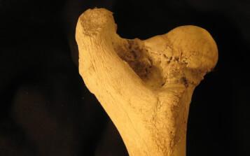 Desarrollan un material con propiedades antiinflamatorias para prótesis con extractos de hoja de mango